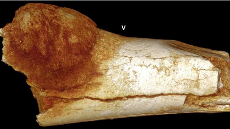 I fossili ci raccontano il cancro